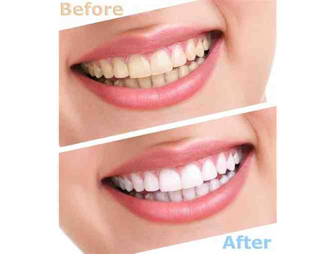 $500 worth of Professional Teeth Whitening by Dr Geoffrey Davis