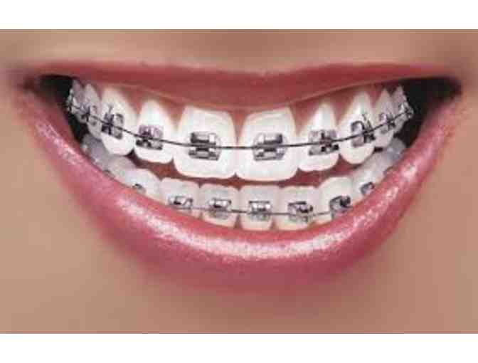 Barkate Othrodontics - $500 Gift Certificate towards Invisalign or Braces