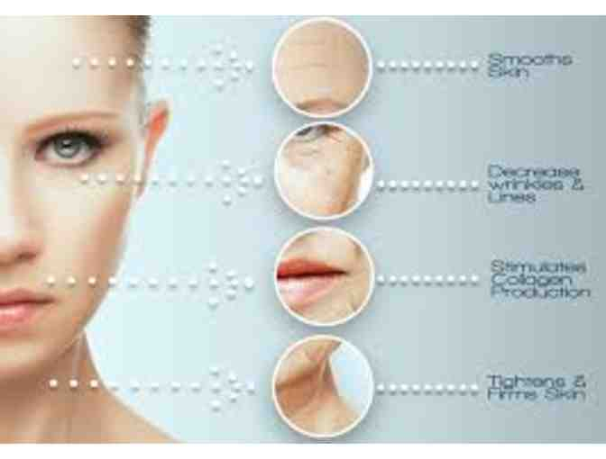 Cryotherapy Facial at FIre and Ice Spa