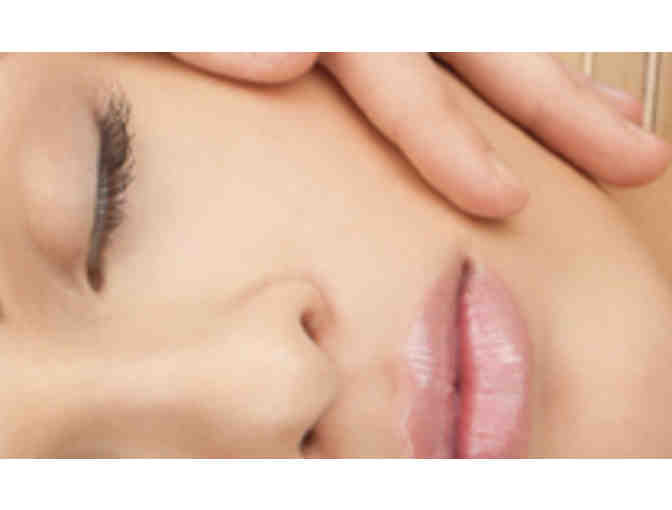 Silk Peel Microdermabrasion at the Greenwich Medical Spa