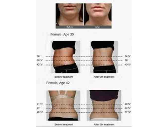 4 Sessions of YOLO Laser-Lipo Fat Reduction