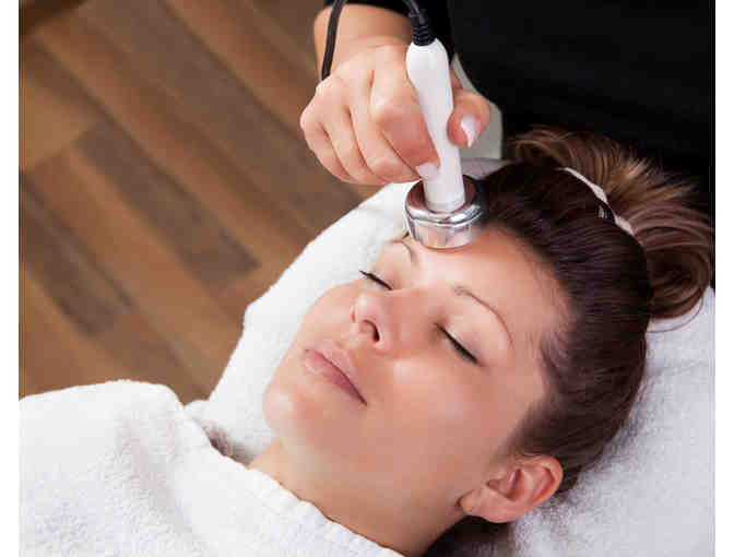 IPL Photo Facial Treatment from Radiance Medical Esthetics