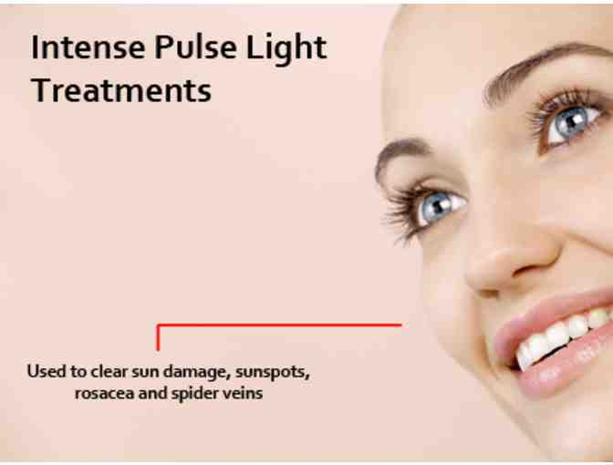 Intense Pulsed Light Photofacial by Belmont Plastic Surgery