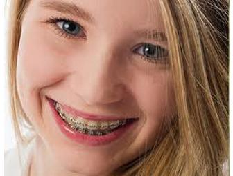 Complete Case of Orthodontic Treatment- Leonard Orthodontics